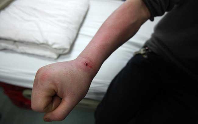 男子给鱼缸换水 遭魟鱼刺伤手臂肿成馒头